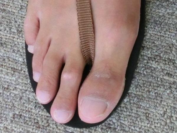 人差し指 痛い が の 足